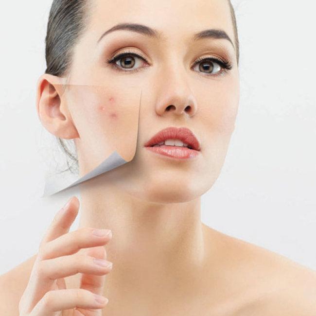 Đến với Xuân Lan Spa để loại bỏ hoàn toàn làn da không đẹp mắt