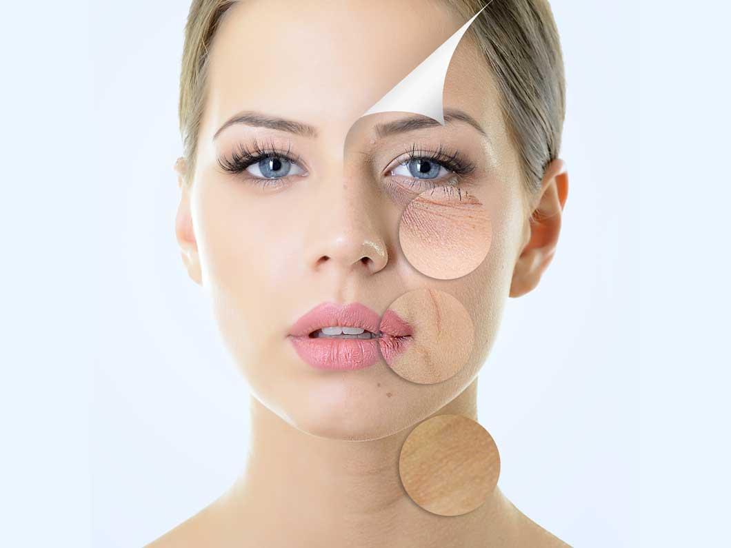 Những vấn đề thường gặp của lão hóa da