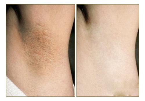 Làn da trước và sau khi điều trị
