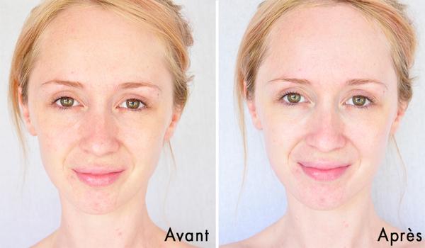 Làn da trước và sau khi sử dụng mặt nạ thải độc