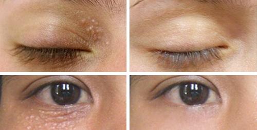 Hình ảnh làn da sau khi điều trị mụn thịt quanh mắt