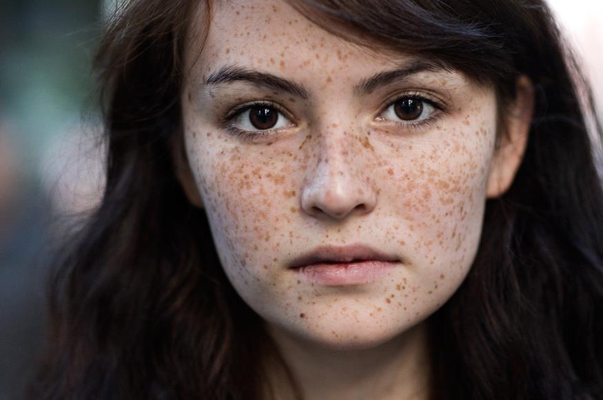 Những tì vết trên khuôn mặt